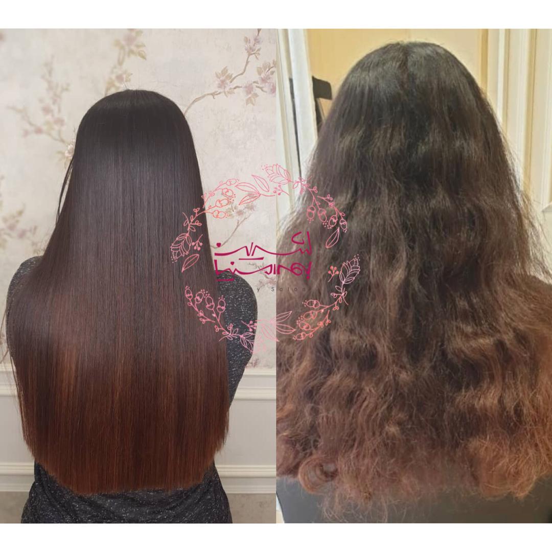 تراپی و احیای مو